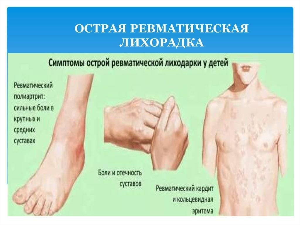 Ревматизм у детей: симптомы и лечение / mama66.ru