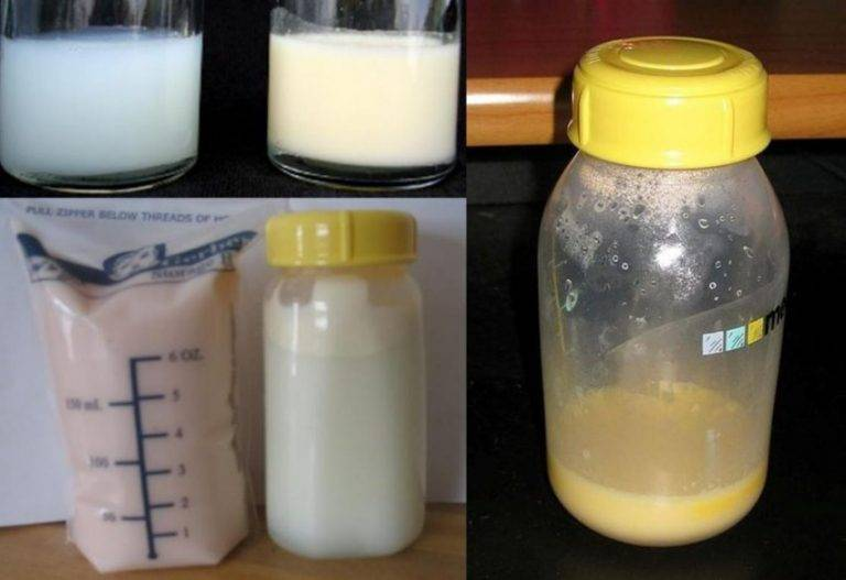Грудное молоко зеленого цвета - советы врачей