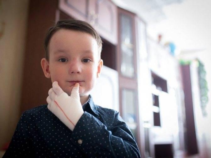 """Лечение болезни, причины возникновения буллезного эпидермолиза, продолжительность жизни """"детей-бабочек"""" - про папилломы"""