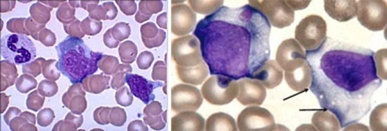 Анализ крови ребенка 4 года мононуклеары 16