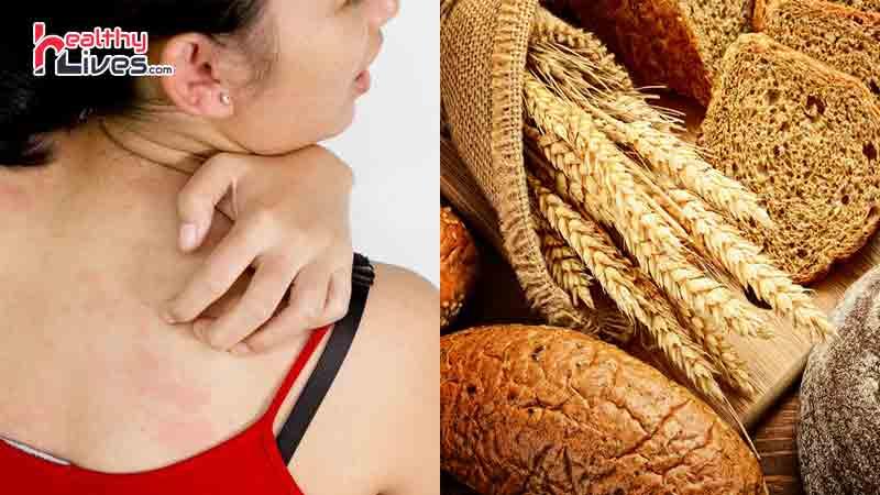 Аллергия на глютен у ребенка и взрослого: симптомы, как проявляется?