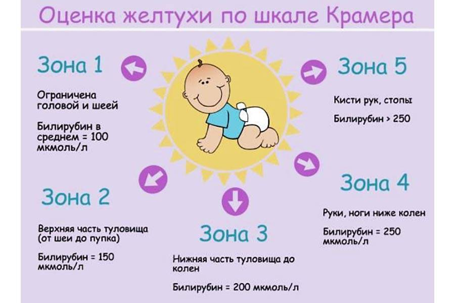 Повышенный уровень билирубина у новорожденных: причины, последствия, лечение
