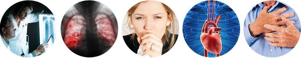 Осложнения после ангины у взрослых, детей: симптомы, как избежать последствий
