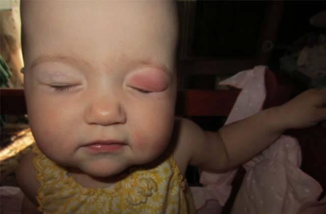 Опухло верхнее веко у ребенка: каковы причины и что делать при покраснении глаз у детей?