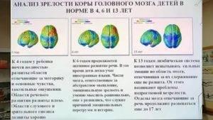 Незрелость коры головного мозга ребенка — последствия и лечение новорожденных - wikidochelp.ru