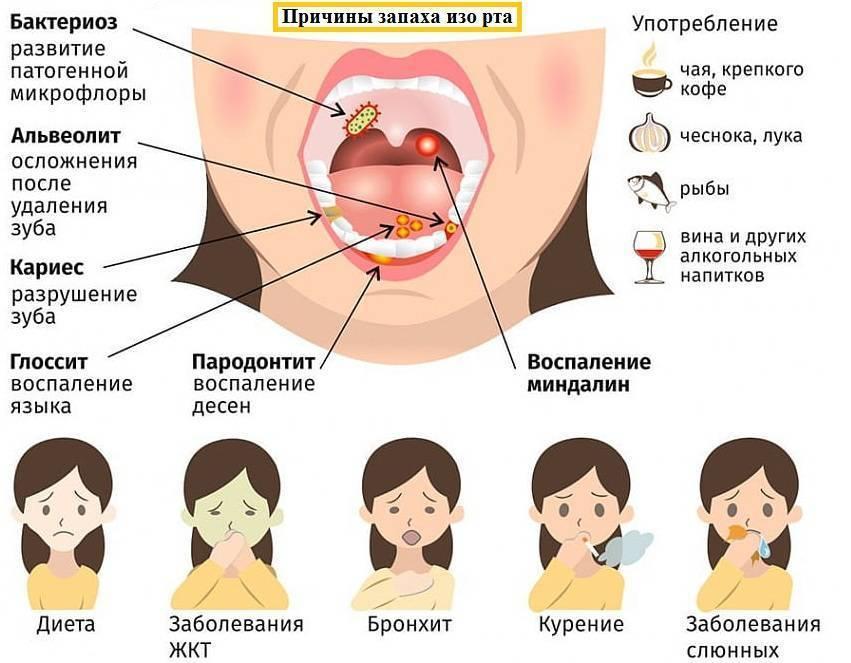 Неприятный запах изо рта у ребёнка: причины и решение проблемы