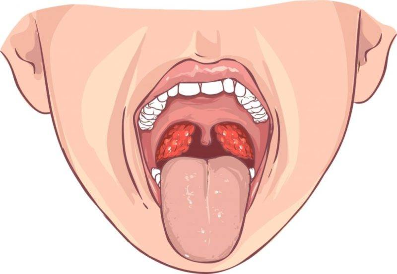 Катаральная ангина у детей: фото горла, симптомы и антибиотики для лечения