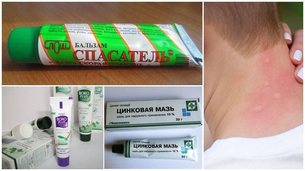 Что делать, если укусила мошка в глаз: чем снять отёк oculistic.ru