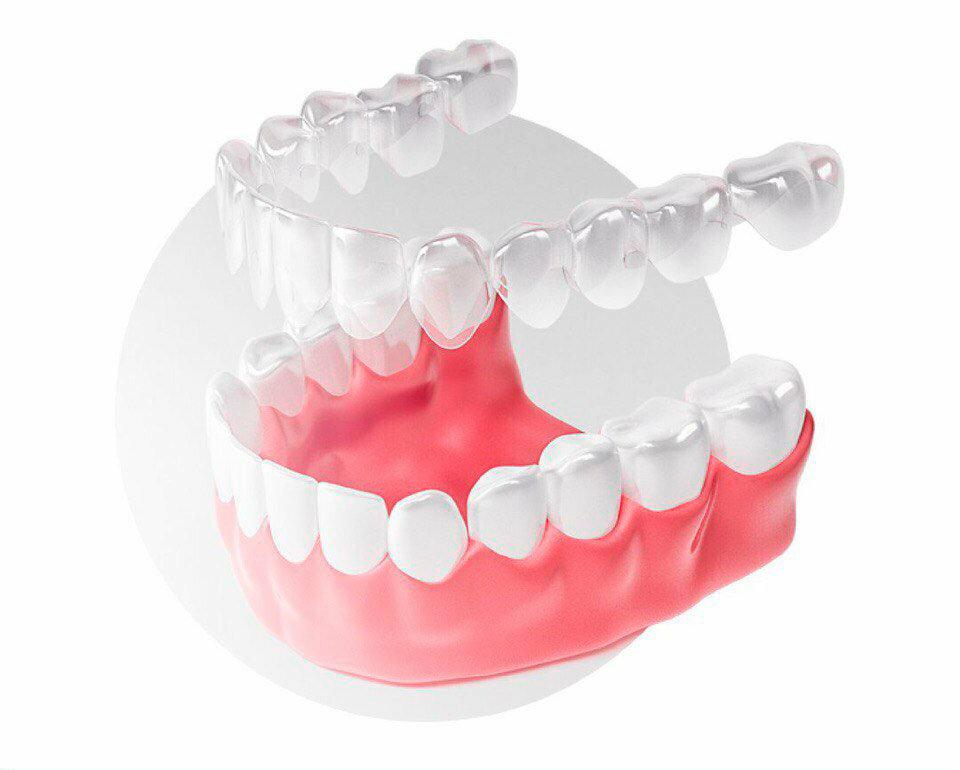 Пластины для выравнивания зубов у детей: разновидности и показания, преимущества и процедура установки, цена