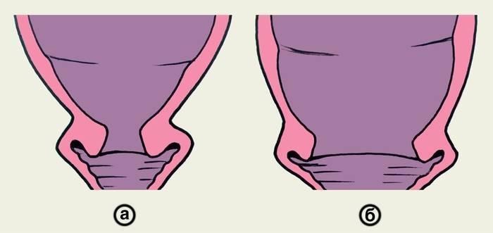 Размягчение шейки матки перед родами в домашних условиях
