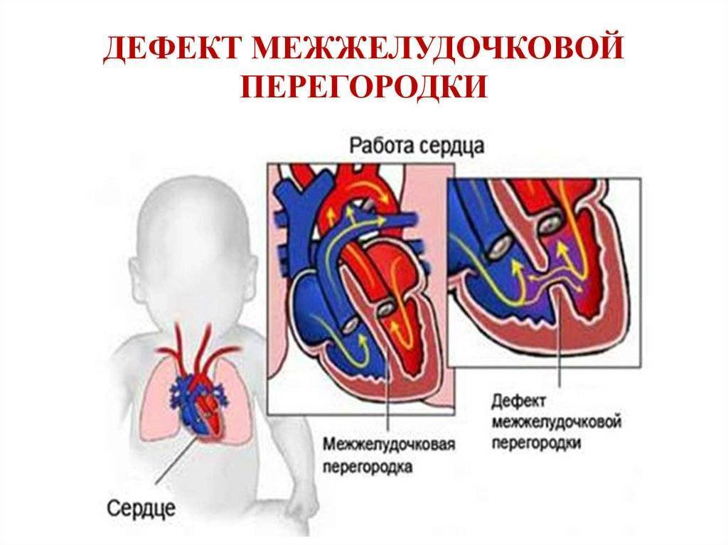 Врожденный порок сердца у новорожденного: причины и последствия