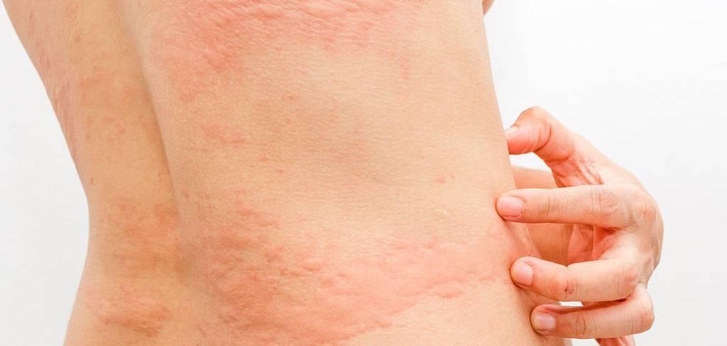 Что делать с высыпаниями на коже у ребенка в виде крапивницы? фото сыпи на теле с пояснениями