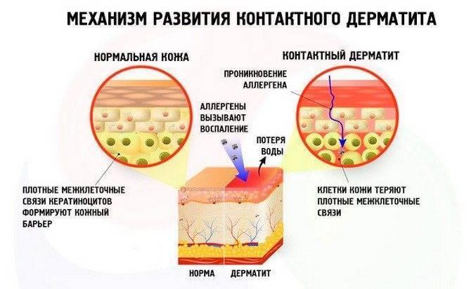 Инфекционный аллергический дерматит | лечим аллергию