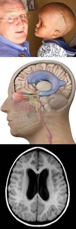 Асимметрия и увеличение боковых желудочков головного мозга
