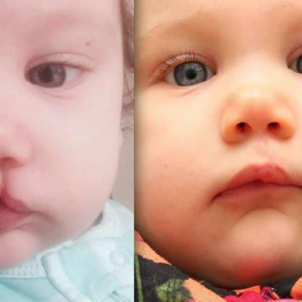 Волчья пасть у детей и заячья губа: причины патологий, фото до и после операции - мытищинская городская детская поликлиника №4