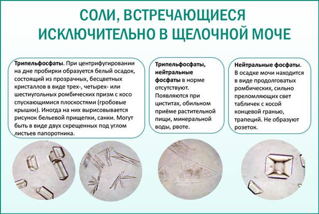 Аморфные фосфаты в моче у ребенка