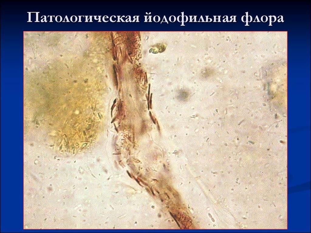 Йодофильная флора в кале у взрослого и ребенка: что это значит, причины и лечение