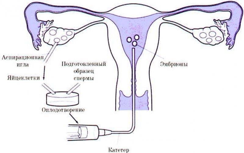 Как происходит перенос эмбриона при эко, правила поведения и ощущения после процедуры
