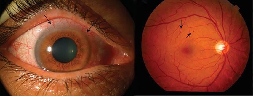 Ангиопатия сетчатки глаза у ребенка: что это такое, причины, лечение