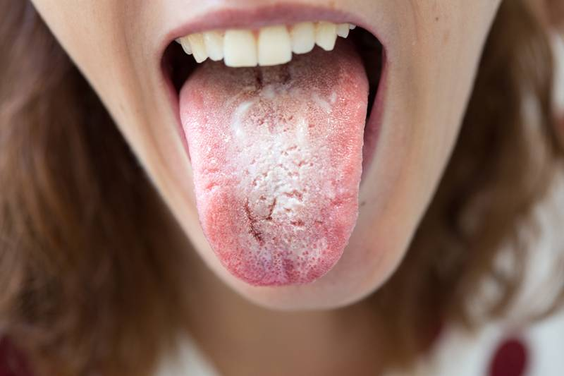 Чем лечить кандидозный стоматит у детей грудничков во рту: фото и лечение