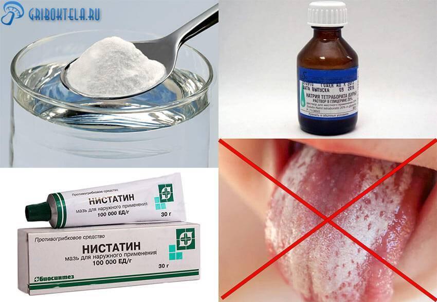 Стоматит – лечение у взрослых народными средствами. чем лечить стоматит у взрослого, что помогает от стоматита?