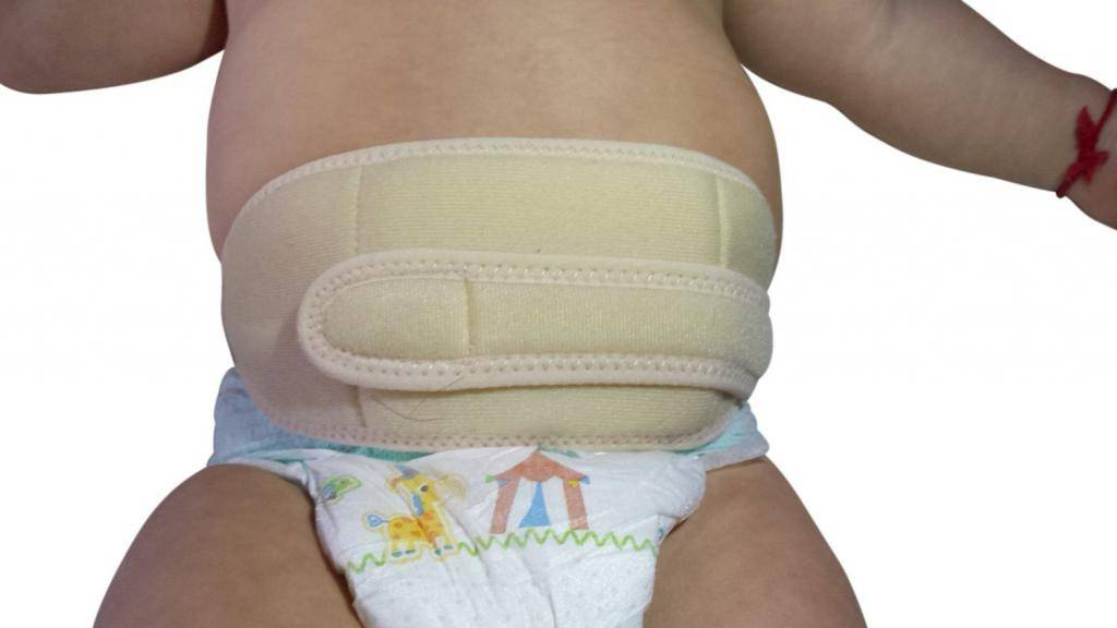 Бандаж для пупочной грыжи для новорожденных, виды детских бандажей
