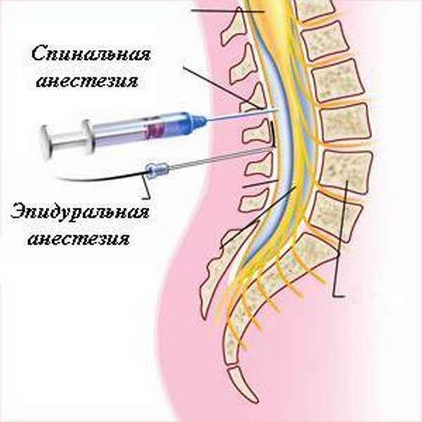 Разница в эпидуральной и спинальной анестезии. чем отличается спинальная анестезия от эпидуральной? отличия в подготовке к проведению