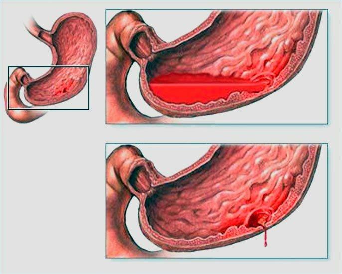 Чем опасны язва желудка и двенадцатиперстной кишки