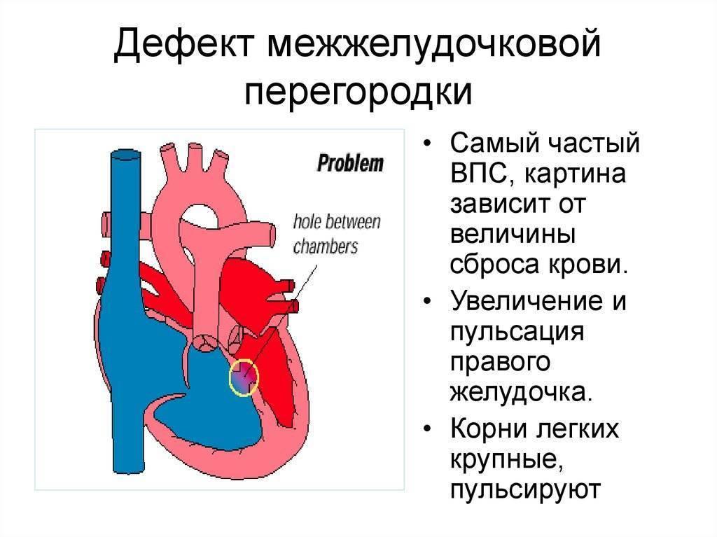 Дефект межжелудочковой перегородки 2 мм у новорожденного