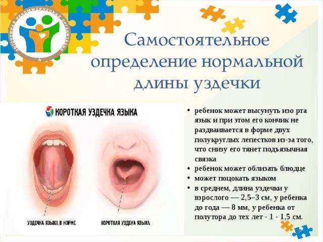Подрезание уздечки под языком у детей: особенности проведения процедуры