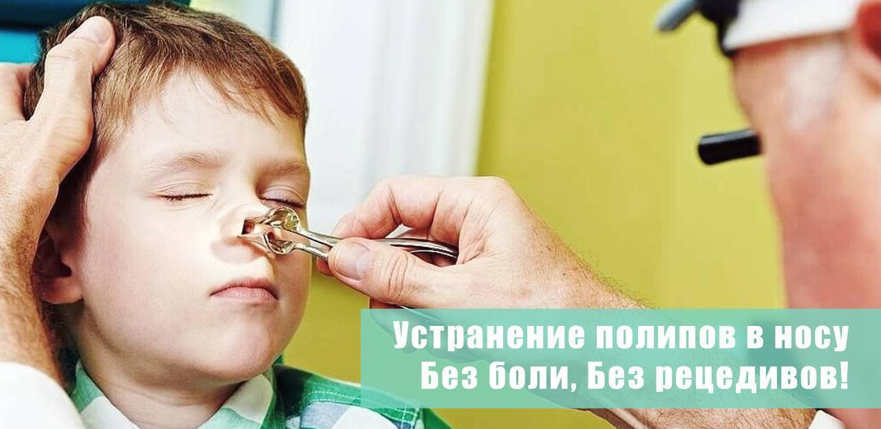 Симптомы и лечение полипов в носу у ребенка