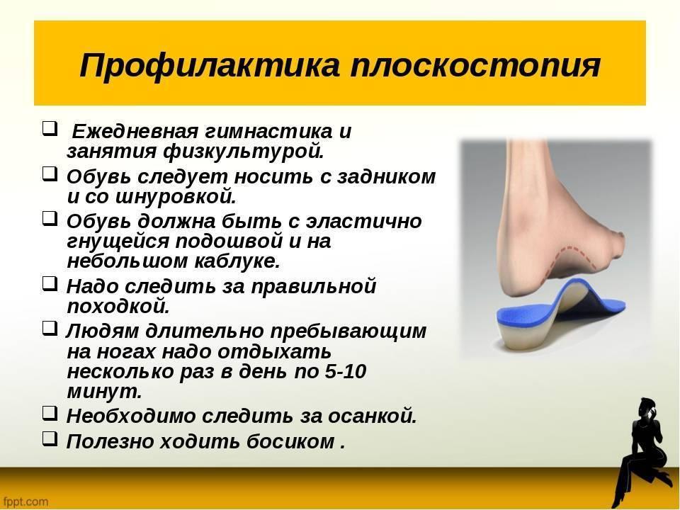 Лечение плоскостопия у детей в домашних условиях