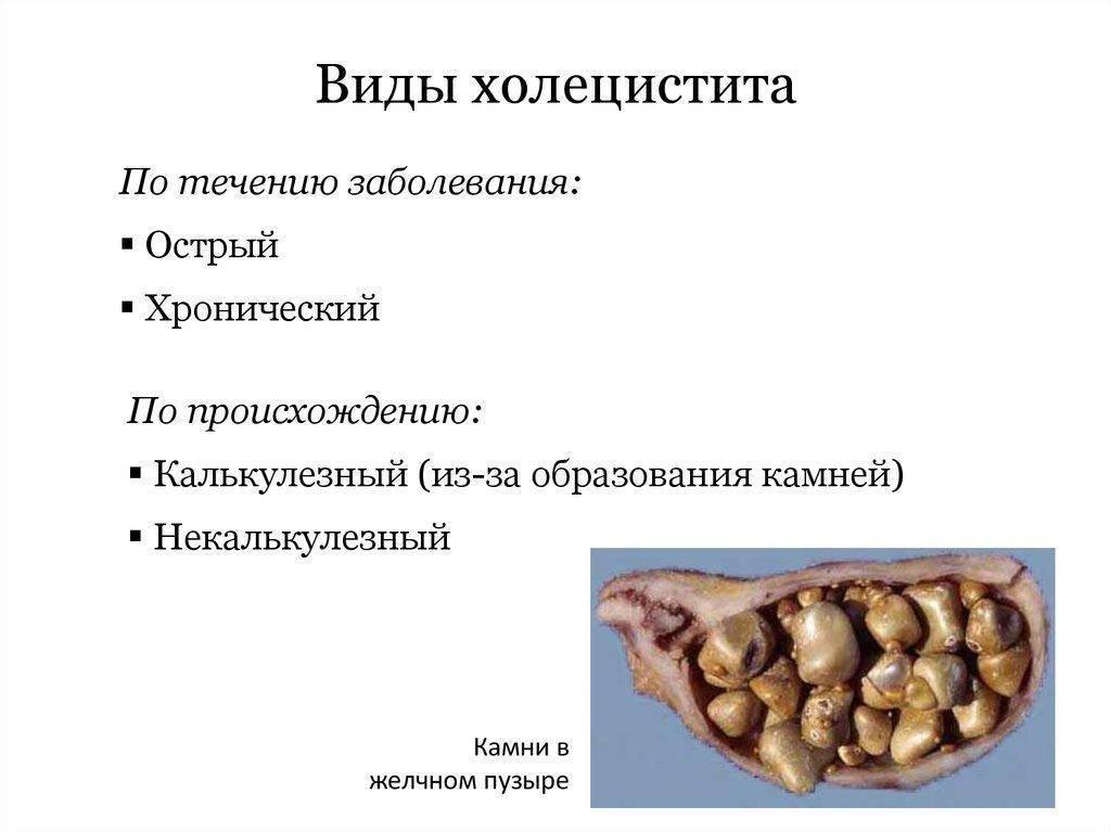 Холецистит у подростков симптомы лечение. симптомы и лечение холецистита у детей. симптомы развития холецистита у детей - человек и здоровье