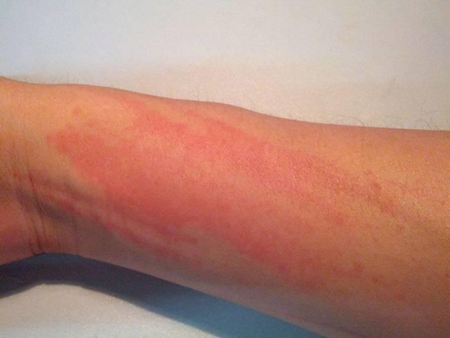 Красные пятна при аллергии на коже у ребенка, причины