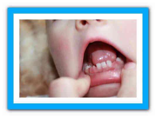 Сопли при прорезывании зубов: как бороться и когда вызывать врача - много зубов