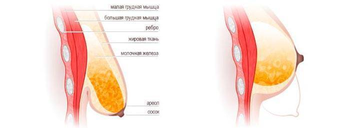 Изменение сосков при беременности: потемнение, сухость, налет