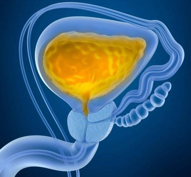 Нейрогенный мочевой пузырь у детей – лечение наследственной патологии