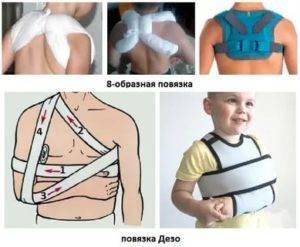 Перелом ключицы у ребенка: от симптомов до лечения
