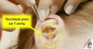Почему у ребенка много серы в ушах: причины темной и коричневой и их лечение