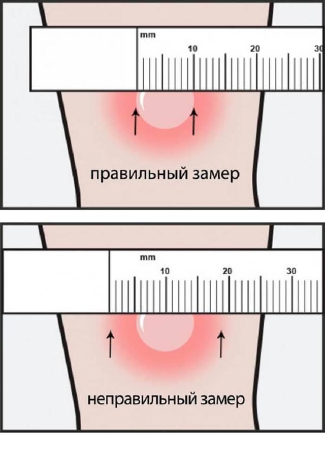 Как измерить манту: правильно определяем размер папуллы