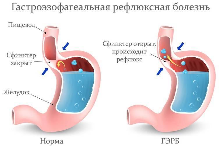 Гастроэзофагеальный рефлюкс у детей с эзофагитом и без. что это, симптомы, лечение, диета для грудничков, народные средства - мед-болезни