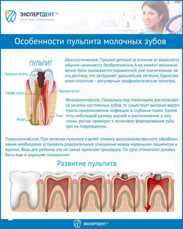 Пульпит у детей: лечение молочных зубов в разном возрасте, профилактика