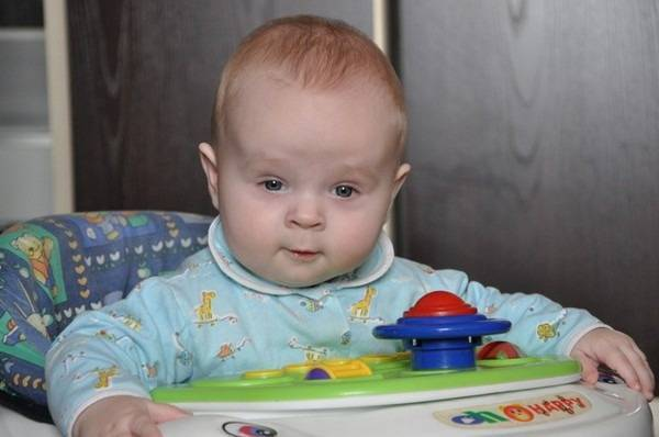 Гидроцефалия – водянка головного мозга у детей