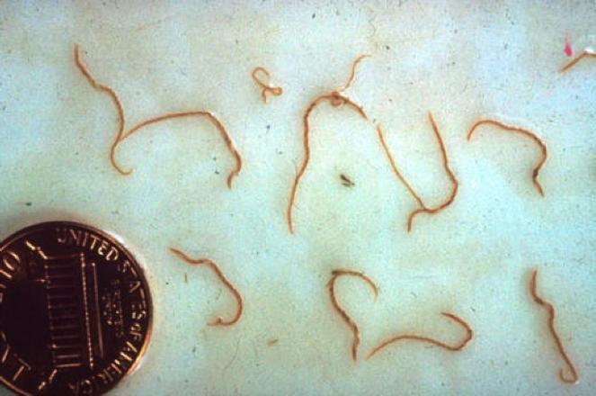 Глисты в кале у детей и взрослых - пути заражения, симптомы, виды паразитов, диагностика и лечение
