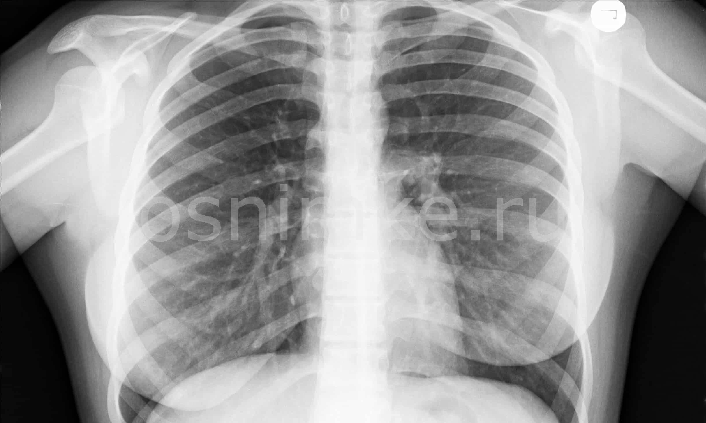 Опасен ли рентген при грудном вскармливании (гв) для кормящей женщины и малыша