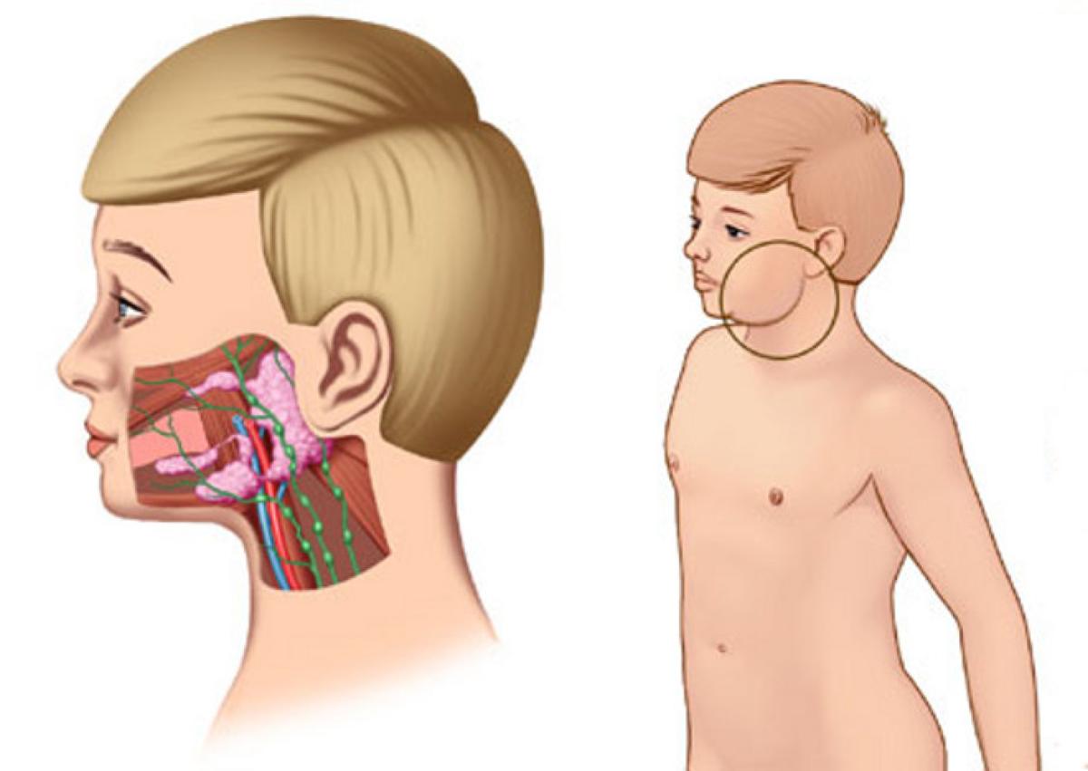 Эпидемический паротит — болезнь свинка у детей: симптомы и лечение