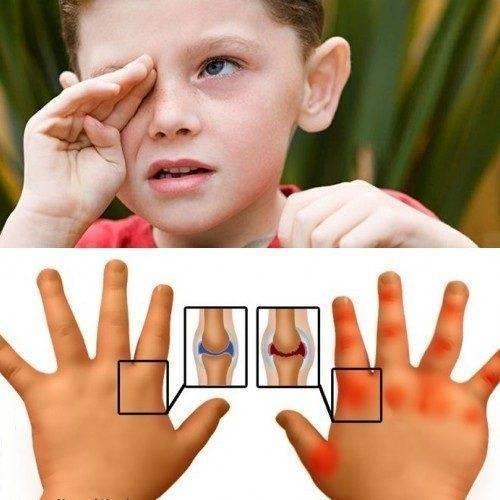 Особенности ювенильного (детского) ревматоидного артрита