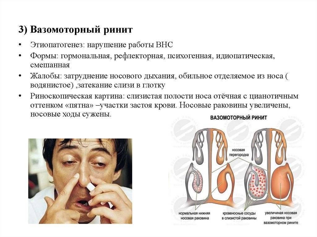 Вазомоторный аллергический ринит: симптомы, виды, эффективное лечение