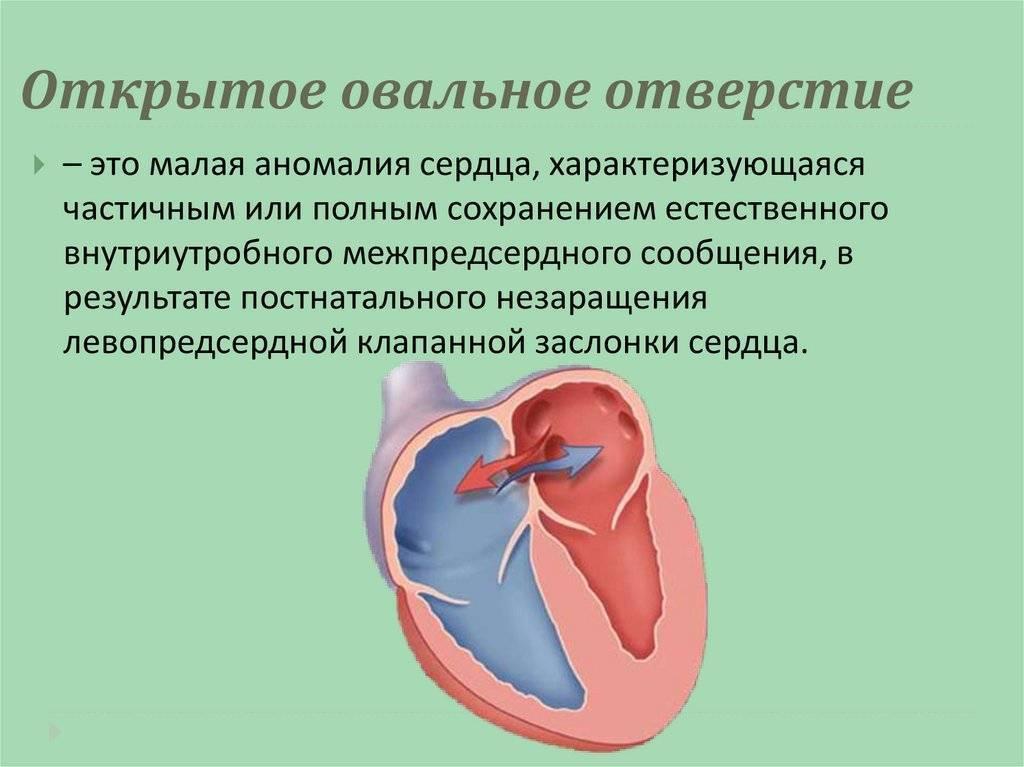 Открытое овальное окно в сердце у ребенка, у новорожденных и у взрослых: симптомы и лечение