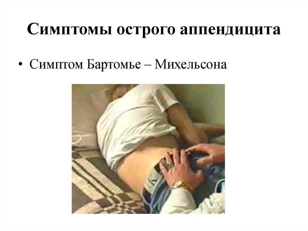 Аппендицит симптомы у детей 3х лет. симптомы приступа аппендицита у детей, определение заболевания по первым признакам в домашних условиях